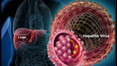 хепатит А