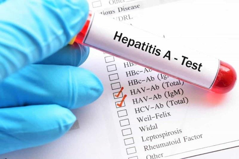 Хепатит А обича лятото