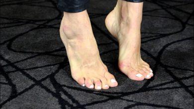 Защо отичат краката?