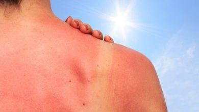 зачервяване - слънчева алергия